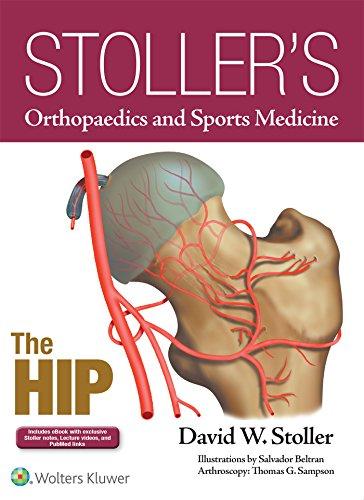 Stoller's Orthopaedics and Sports Medicine: The Hip - http://medicalbooks.filipinodoctors.org