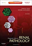 img - for Diagnostic Atlas of Renal Pathology: Expert Consult - Online and Print, 2e book / textbook / text book