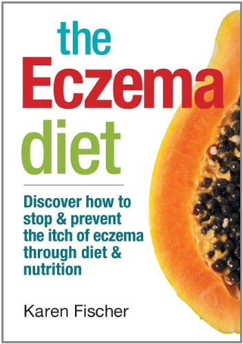 The Eczema Diet: Discover How to Stop and Prevent The Itch of Eczema Through Diet and Nutrition (The Best Cure For Eczema)