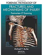 Forensic Pathology of Fractures and Mechanisms of Injury: Postmortem CT Scanning