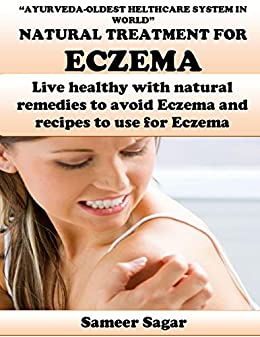 Eczema Ayurvedic Remedies Live Healthy With Natural Remedies To