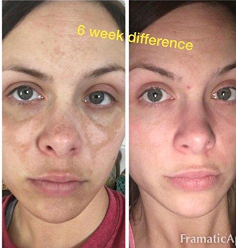 Admire My Skin Dark Spot Corrector Remover for Face 2% Hydroquinone Melasma Treatment Fade Cream with Kojic Acid Vitamin…