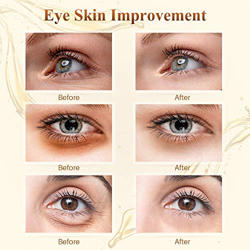 51iQPygO73L - 24K Golden Collagen Eye Pads - Gel Eye Mask for Eyes Treatment Puffiness Anti Aging Removing Bags Deep Hydration Relieve Dark Circles Under Eye Gel Mask for Women and Men (20 Pairs)