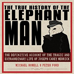 The True History of the Elephant Man Audiobook
