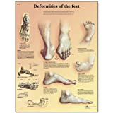 """3B Scientific VR1185L Glossy Laminated Paper Deformities of The Feet Anatomical Chart, Poster Size 20"""" Width x 26"""" Height"""