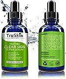 Tea Tree Clear Skin Serum - Age-Defying formula for acne-prone skin with 20% Vitamin C, Retinol, Niacinamide, Salicylic Acid & Hyaluronic Acid for Blemish-Free, Soft, Radiant, Youthful Skin (1 oz)