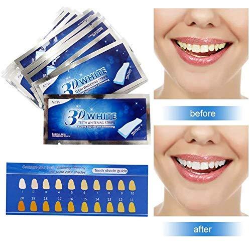 Teeth Whitening Strips,Teeth Bleaching,Teeth Whitening Kit,Teeth Whitening...