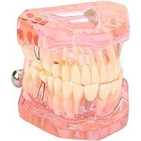 Akozon Modelo dental de la enseñanza, los dientes