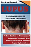 Lupus: A Resolving Guide To Sufferers And