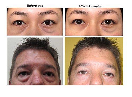 crema anti arrugas de ojos bolsa!!! efecto instantáneo!!! Reducir y elimina bolsas de los ojos en 1-2 minutos!!! Para el hombre y la mujer.