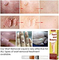Wart Remover Plantar Wart Removal Corn Callus Remover Wart Removal Pen With Natural Ingredients Penetrates And Removes Common And Plantar Warts Corns Callus Stops Wart Regrowth 5ml Amazon Ae