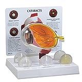 nuclear science chart - Human Cataract Eye Anatomical Model