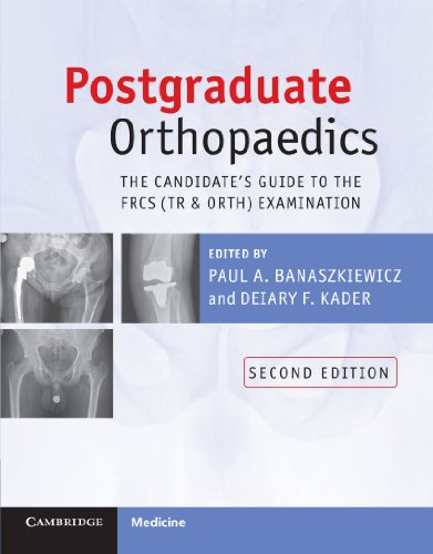 Postgraduate Orthopaedics: The Candidate's Guide to the FRCS (Tr and Orth) Examination
