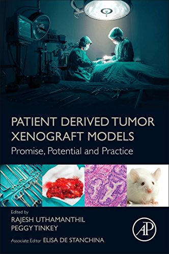 Patient Derived Tumor Xenograft Models: Promise, Potential and Practice (Dynamic Alignment)