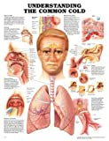Understanding the Common Cold Anatomical Chart, Anatomical Chart Company Staff, 1587793660