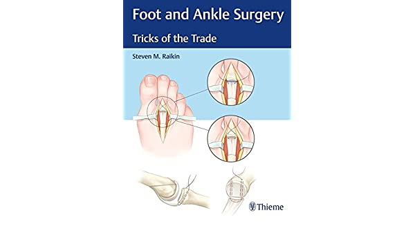 Foot And Ankle Surgery Tricks Of The Trade 9781626234918 Medicine