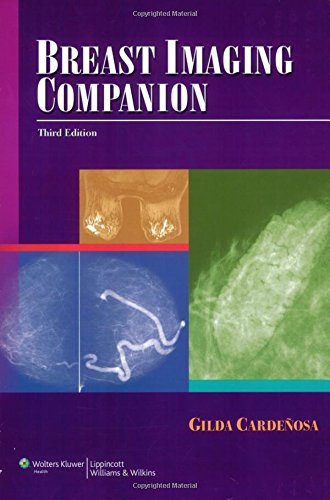 Read ebook breast imaging companion imaging companion series full read ebook breast imaging companion imaging companion series full online fandeluxe Images