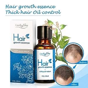 Hair Growth Essence Oil, Luckyfine Hair Regrowth Treatment for Anti Hair Loss, Fast Powerful Hair Growth Regrowth Essence Liquid, Hair Repair for Men & Women, All Hair Types