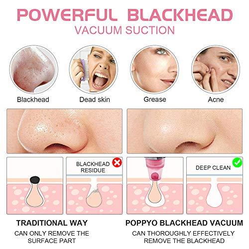 Blackhead Remover Pore Vacuum Electric Blackhead Vacuum Cleaner Blackhead Extractor Tool Device Removal Suction Beauty…