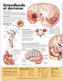 Understanding Stroke (Entendiendo el Derrame), Anatomical Chart Company Staff, 1587799898