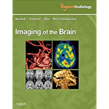 Imaging of the Brain E-Book: Expert Radiology Series