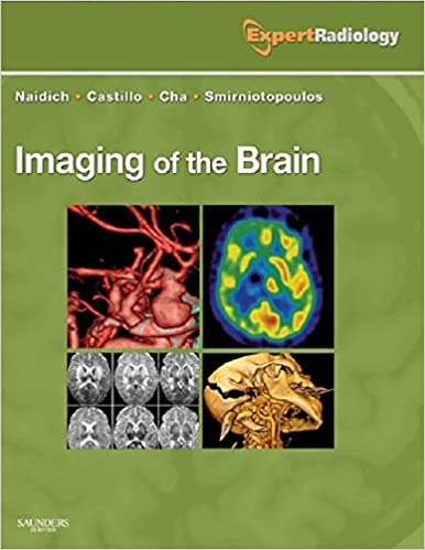 ``DOC`` Imaging Of The Brain E-Book: Expert Radiology Series. field hours listed Arizona precio Discover partidas nearest