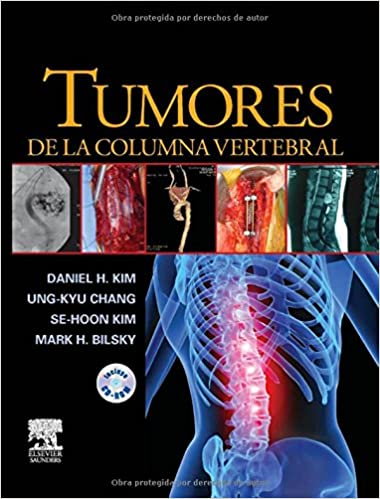 Tumores De La Columna Vertebral C/Cd: Daniel H. Kim, ELSEVIER ESPA#A ...
