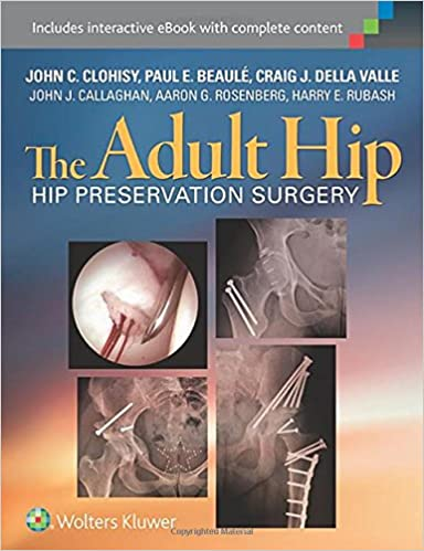 The Adult Hip: Hip Preservation Surgery: 9781451183931