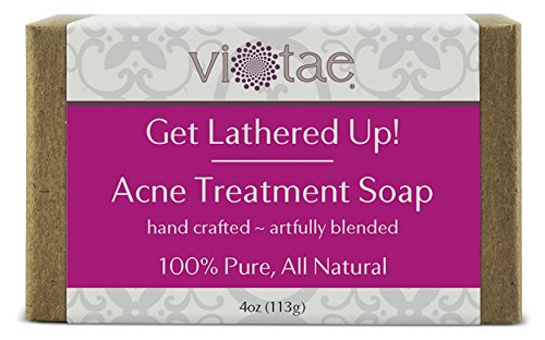 Natural Body Acne Treatment - 5