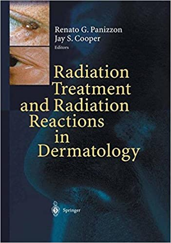 Download E-books Radiation Treatment and Radiation Reactions