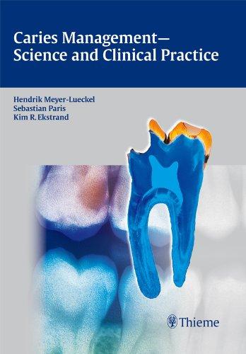 Caries Management - Science and Clinical Practice (1st 2013) [Meyer-Lueckel, Paris & Ekstrand]