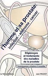 L'homme et sa prostate : infection, adénome, cancer : Dépistages et traitements des maladies de la prostate Conséquences urinaires et sexuelles