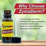 Zymaderm Molluscum Contagiosum Treatment - Fast