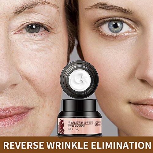 Horse Oil Effective Freckles Stain Pregnacy Melasma Face Remove Plaque Cream