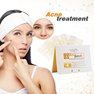 Acne Pimple Patch,100 Patches Luckyfine Acne Care Pimple Patch Absorbing Cover, Gentle Breathable Cover, Two Universal Sizes Hydrocolloid Bandages (20 Patches 5 Sheet)