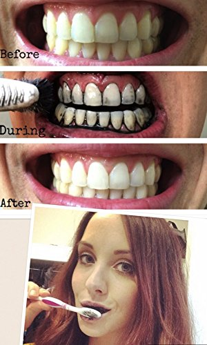 Natural Teeth Whitening Activated Charcoal Powder - 100% All Nature- with Organic Coconut Activated Charcoal for Stronger Healthy Whiter Teeth.