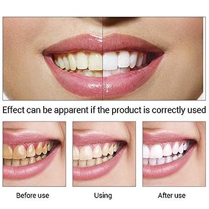 Shoppy shop 10ml Teeth Whitening Essence Powder Oral Hygiene