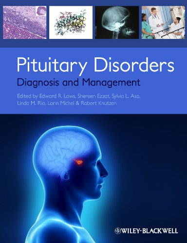 Pituitary Disorders: Diagnosis and -