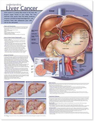 Understanding Liver Cancer Anatomical Chart ()