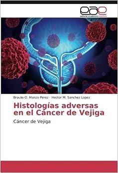 Book Histologías adversas en el Cáncer de Vejiga: Cáncer de Vejiga