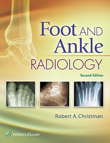 Foot and Ankle Radiology (English Edition)