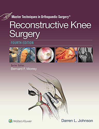 Master Techniques in Orthopaedic Surgery: Reconstructive Knee Surgery - http://medicalbooks.filipinodoctors.org