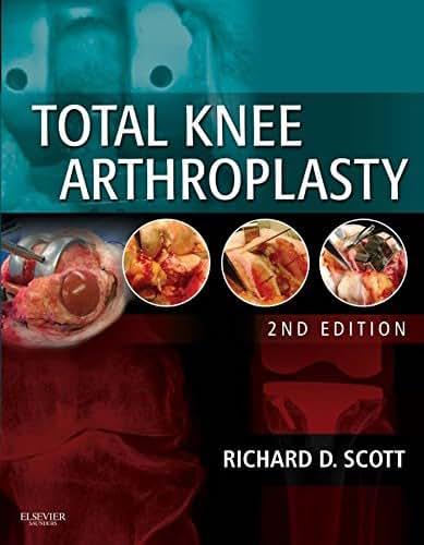 Total Knee Arthroplasty E-Book