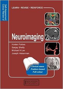 Donde Descargar Libros En Q&a Color Review Of Neuroimaging Mega PDF Gratis
