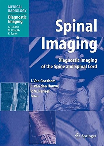 Read Online Spinal Imaging: Diagnostic Imaging of the Spine and Spinal Cord (Medical Radiology) (2007-03-20) pdf