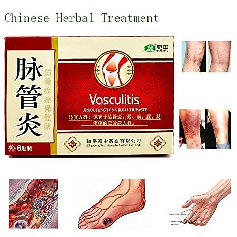 organisme în recenzii varicose recenzii cum de a vindeca venele varicoase pe picioare
