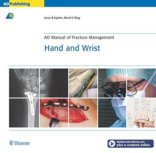 Fractures Wrist (AO Manual of Fracture Management: Hand & Wrist (AO Manual of Fracture Management Series))