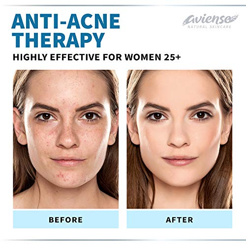 Anti-Aging Retinol Cream for Face with Hyaluronic Acid 3% - Wrinkle Cream for Face - Made in USA - Facial Moisturizer & Dark Spot Remover for Face - Retinol & Collagen Cream for Fine Lines