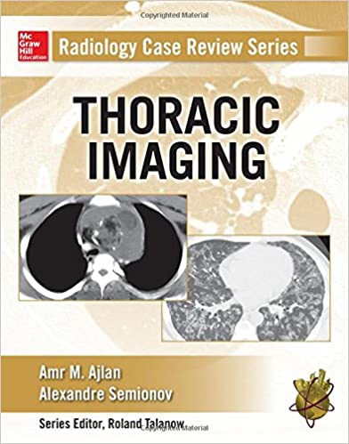 Radiology case review series thoracic imaging 9780071818087 radiology case review series thoracic imaging 1st edition fandeluxe Images