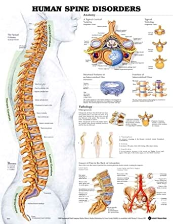 Amazon.com: Anatomical Chart Company Spine Disorders ... on spine layout, spine joints, spine icon, spine numbering, spinal cord injury, pharyngeal arch, spine surgery, spine cartoon, spine too straight, spine fracture, spine graphic, skeletal pneumaticity, spine with nerves, spine segments, spine drawing, spine chart, spine with numbers, spine clipart, spine model, spine x-ray, spine l5-s1, spine anatomy, spine bones,